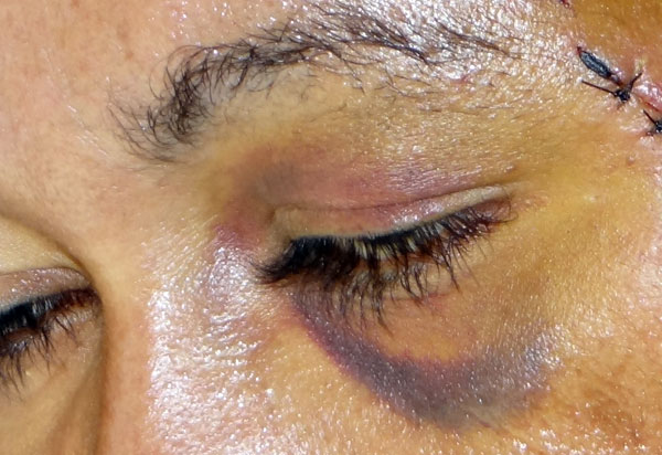 Mulher em situação de violência doméstica poderá ter atendimento prioritário no SUS