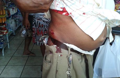 Brumado: Bandido alveja cliente dentro de mercadinho em assalto