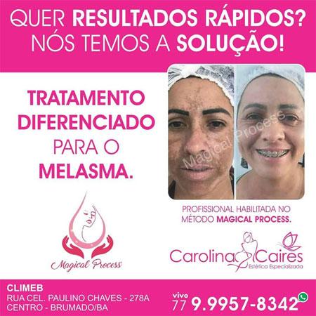 Processo Mágico de Tratamento do Melasma, agora na Carolina Caires Estética Especializada