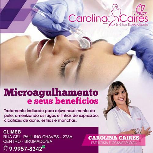 Carolina Caires: Estética Especializada - cuide da sua pele