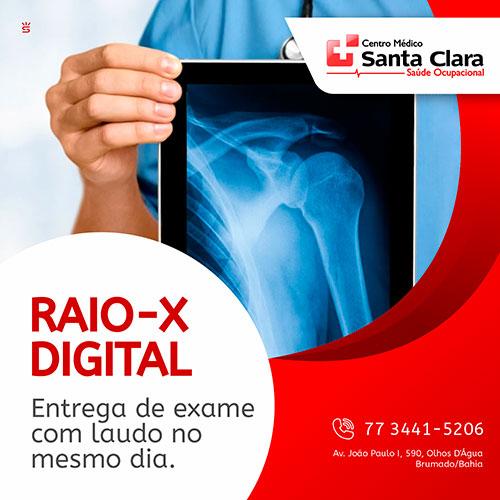 Centro Médico Santa Clara: Raio-X Digital, com entrega de exame com laudo no mesmo dia